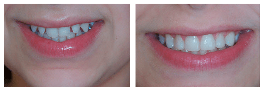 Loganville smile gallery showing the before and after photos of a woman's teeth