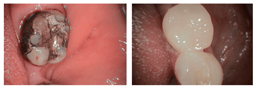 Loganville smile gallery - Replacing an old crown with a new CEREC crown