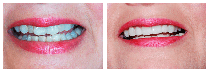 Loganville smile gallery - A lady's teeth after she has undergone a CEREC crowns procedure