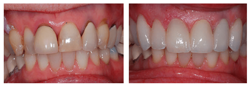 Loganville smile gallery - After our caring dentist has placed CEREC crowns on the front teeth