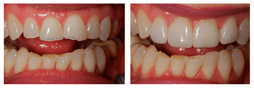Loganville smile gallery - Reshaping teeth with CEREC crowns