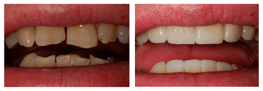 Loganville smile gallery - Before and after images of a patient who has received crowns