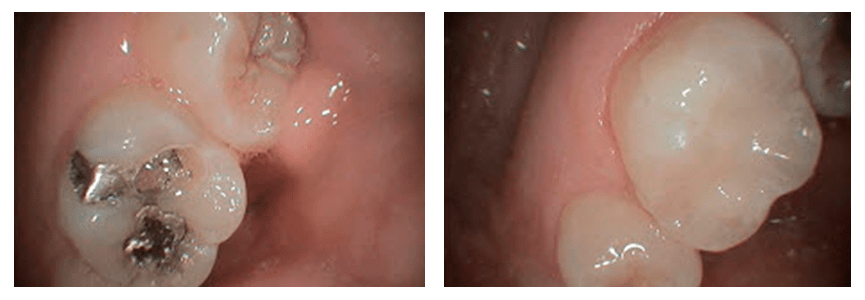 Loganville smile gallery - An old amalgam filling being replaced by a new composite one