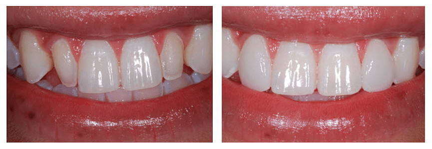 Loganville smile gallery - A before and after of veneers
