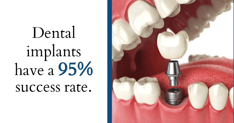 Dental implants have a 95% success rate.