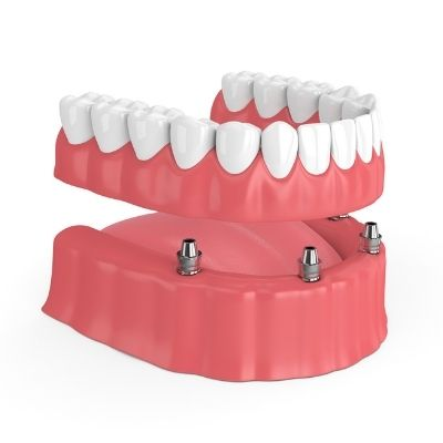 An implant-supported denture used at Creekside Dentistry in Loganville, GA.