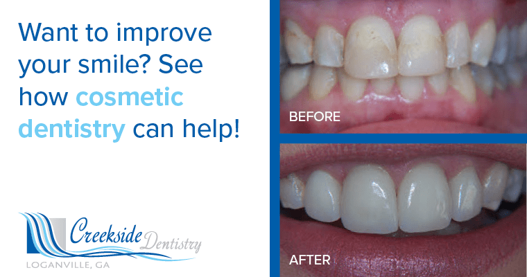 Before and after picture of cosmetic dentistry. Text: Want to improve your smile? See how cosmetic dentistry can help!
